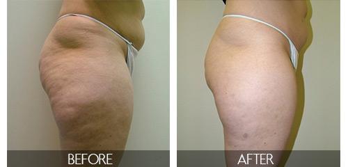 cellulite-removal