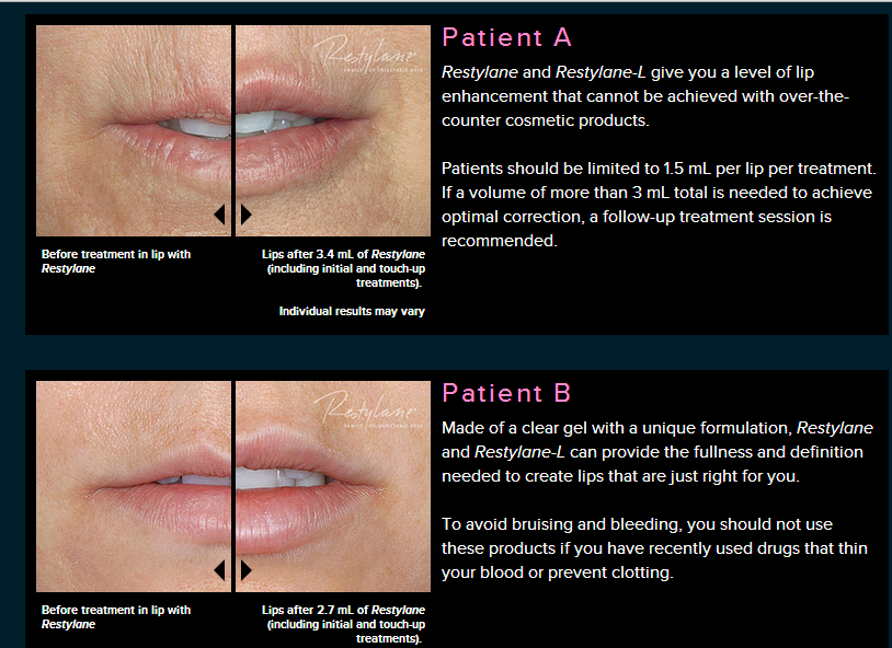 Restylane Dermal Filler Treatments before and after photos