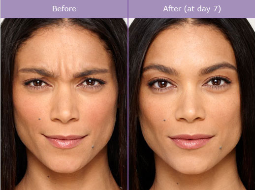 botox before and after photo