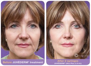 Before and after Juvederm Ultra Plus XC photos