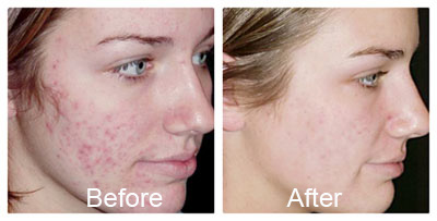 before and after acne treatments