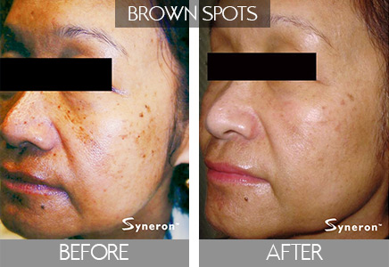 before and after brown spot removal