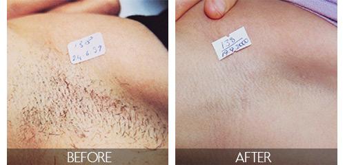 Laser Hair Removal Pasadena Ca Le Reve Med Spa