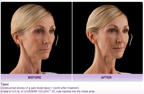 before and after Juvederm Voluma XC photos