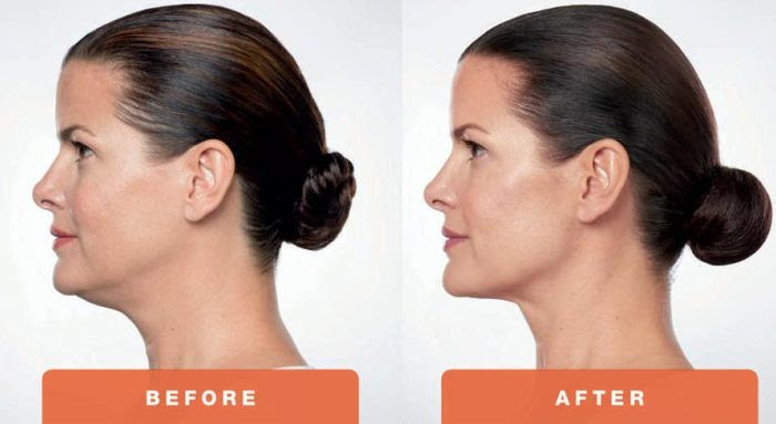 before and after Kybella treatments