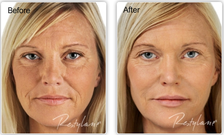 before and after Restylane photos