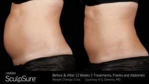 before and after SculpSure fat reduction treatments