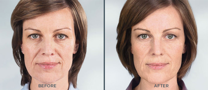 before and after Sculptra photos