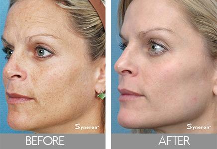 before and after skin rejuvenation