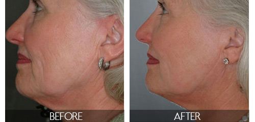 Skin tightening before and after results