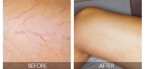 before and after laser vein treatments