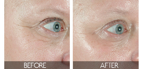 before and after Ergonomic Sublative Applicator treatments